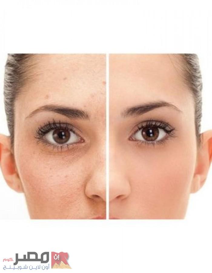 كريم صنفرة الوجه بالعسل والكولاجين +كريم صنفرة الوجه بالفحم - 300 جم
